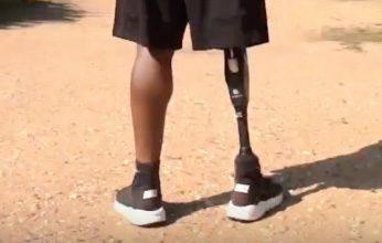 Ампутация на крак - какво трябва да знаем? - Ортомедикс