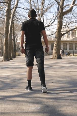 Протези за крака ( долни крайници ) Протеза за крак Теодор - Ortomedics