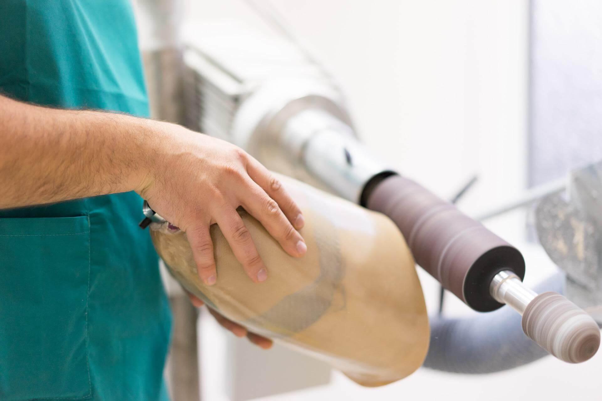 правене и изработка на протеза за крак - Ортомедикс