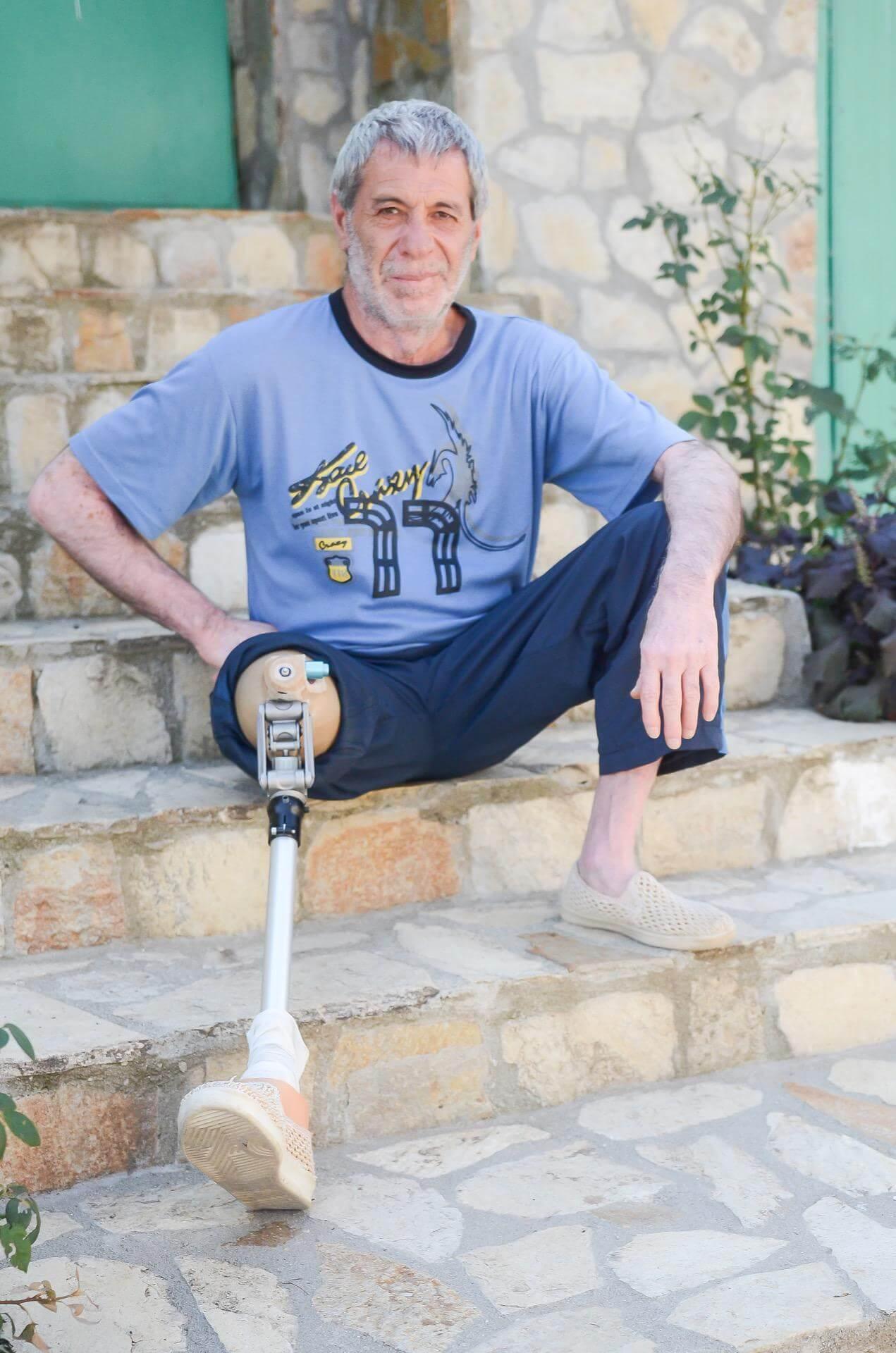 подколянна и бедренна протеза за крак - Ортомедикс