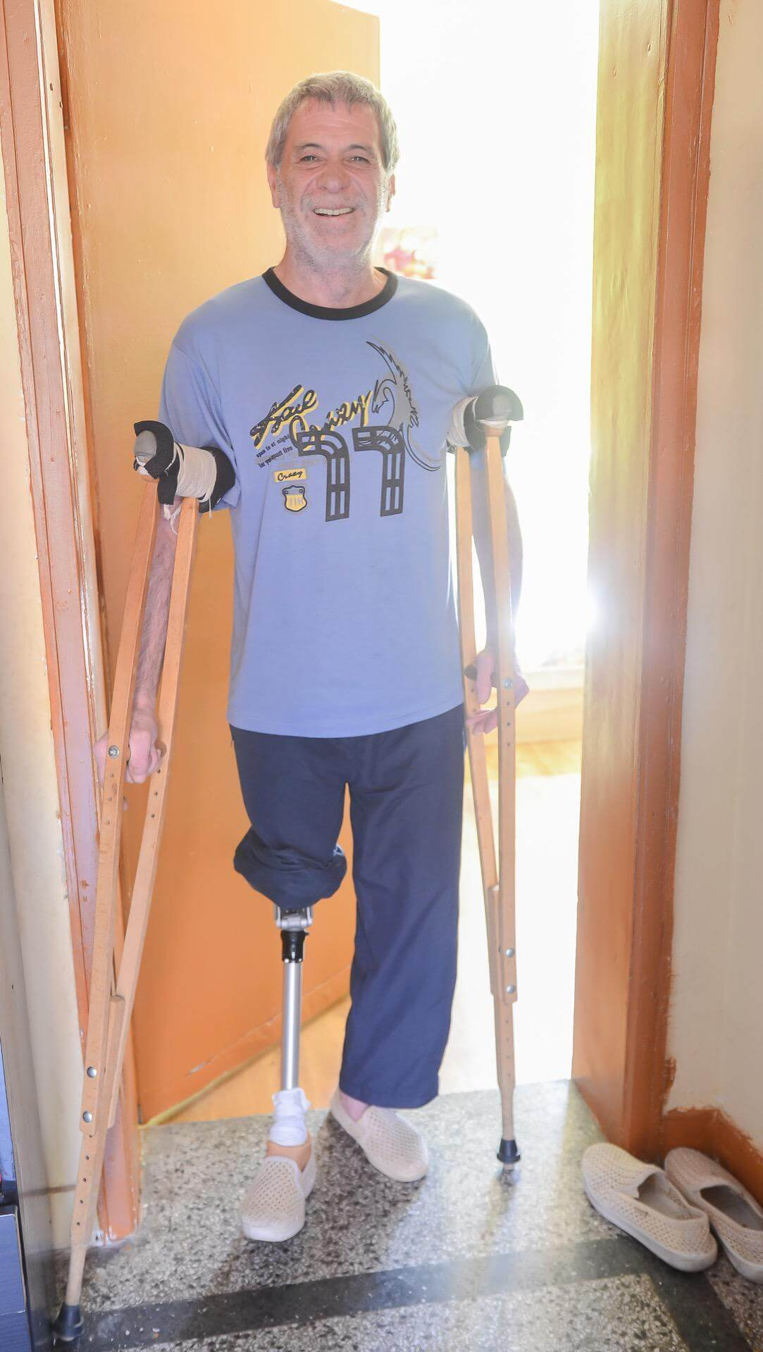 бедрена протеза за крак - Ортомедикс