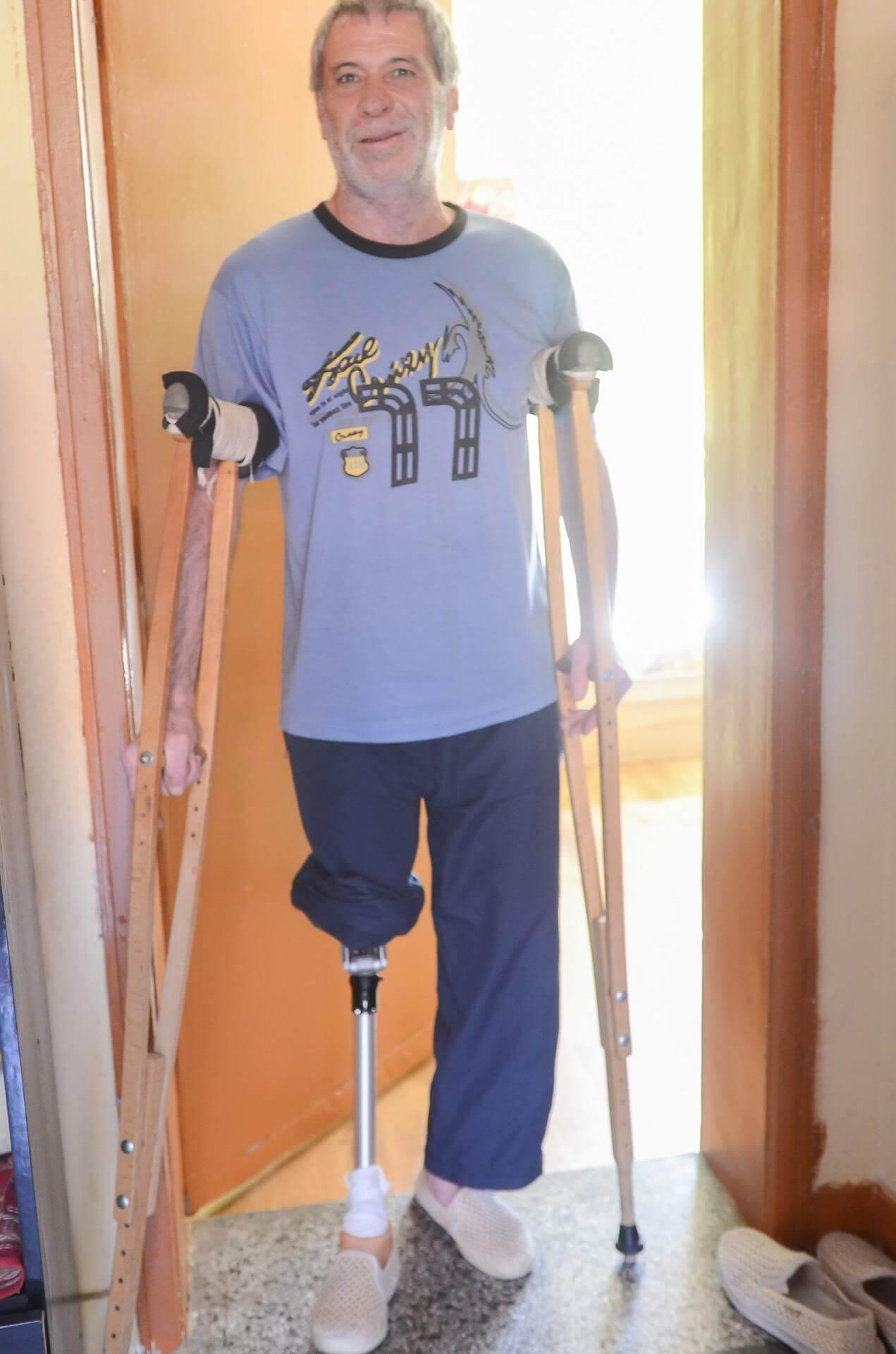Протеза за долен крайник - Ортомедикс