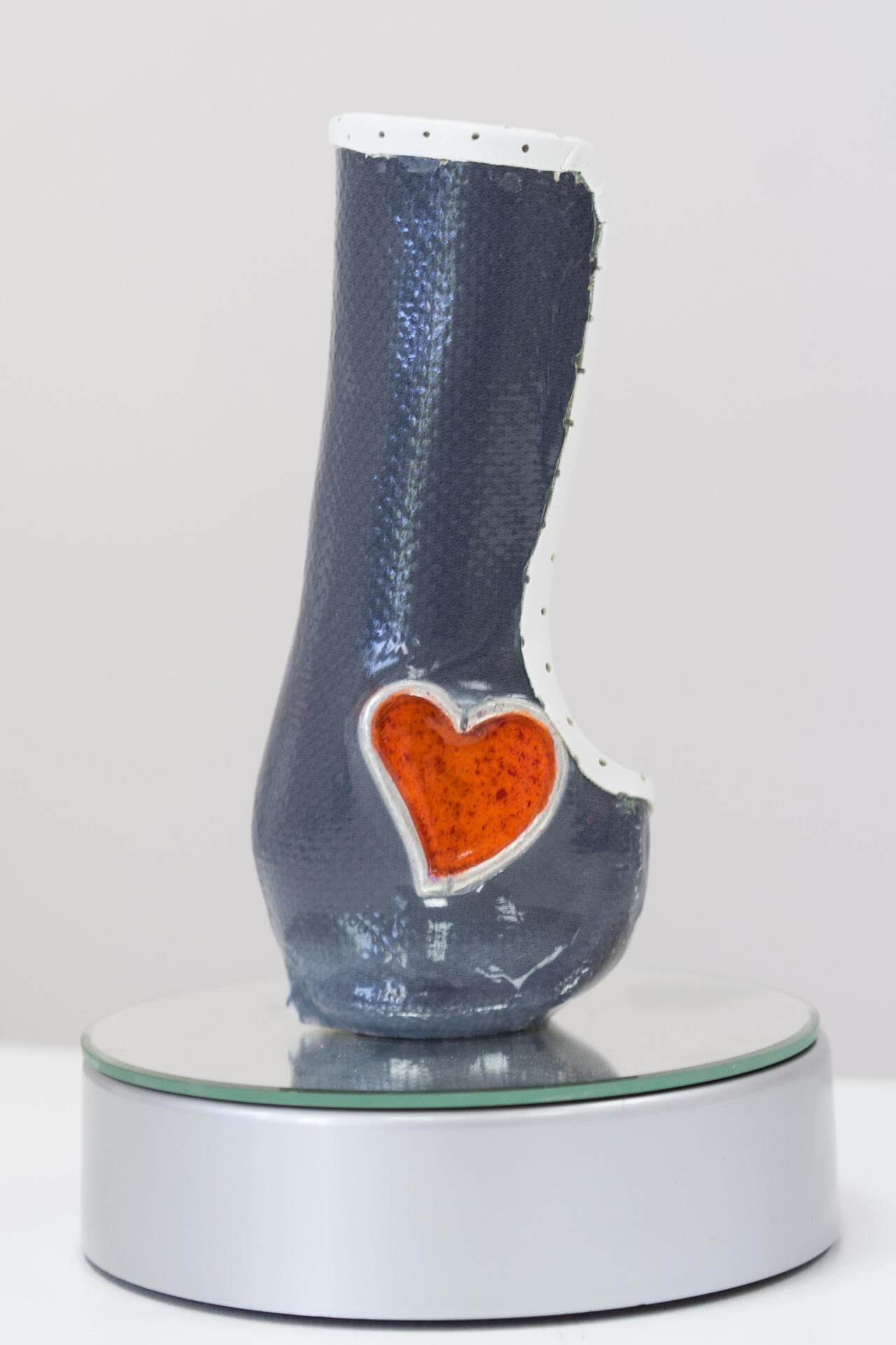 протези за крака от Ортомедикс