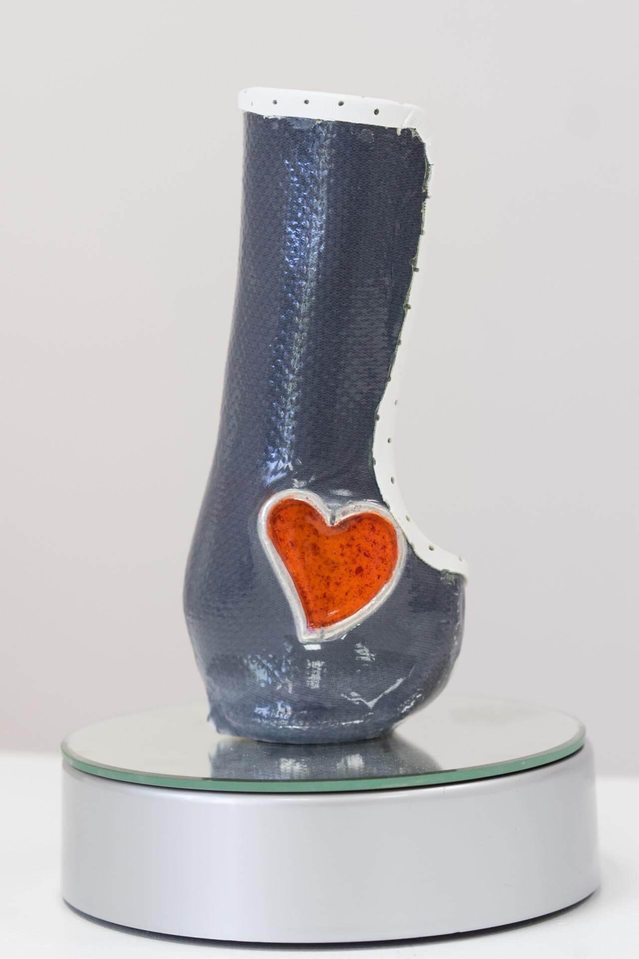 Протези за крака цени - Ортомедикс