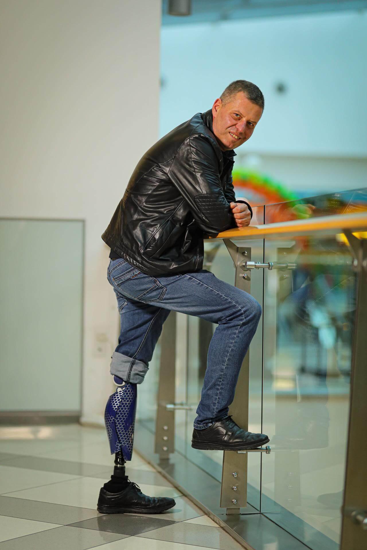 Протези за крака - Димитър 2 - Ortomedics