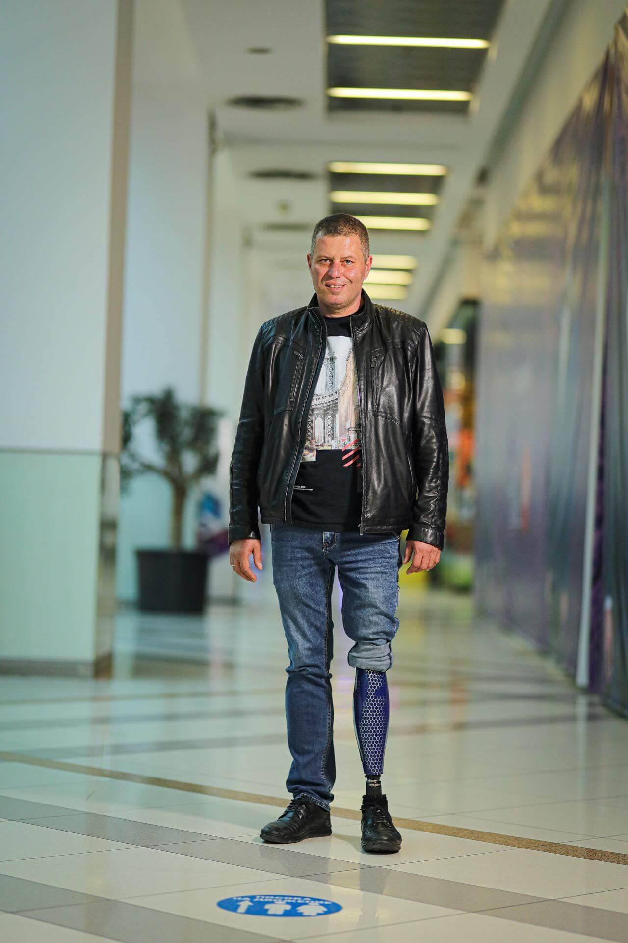 Протези за крака - Димитър 21 - Ortomedics