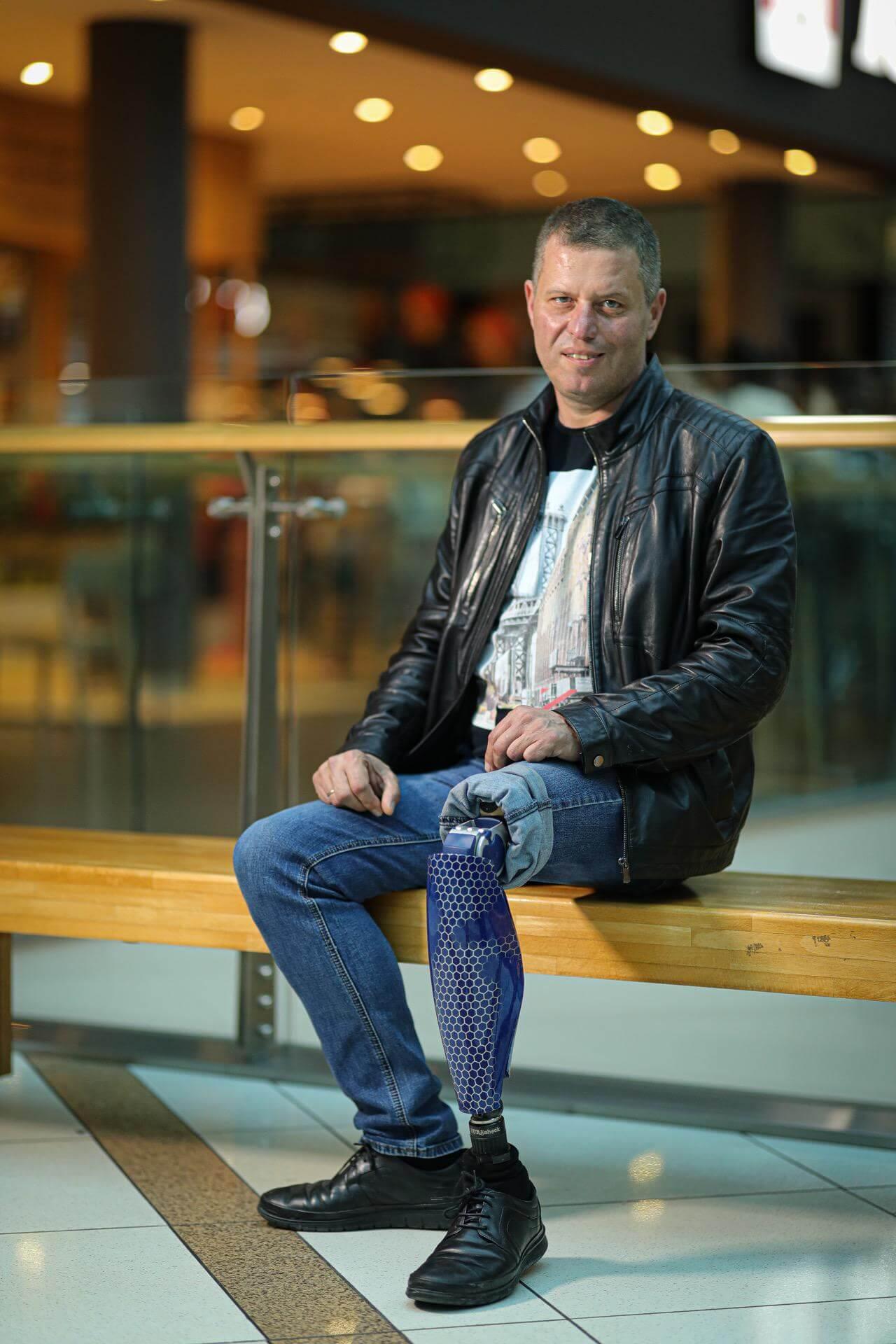 Протези за крака - Димитър 22 - Ortomedics