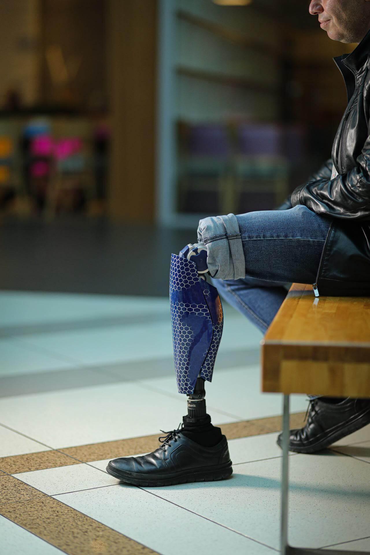 Протези за крака - Димитър 24 - Ortomedics