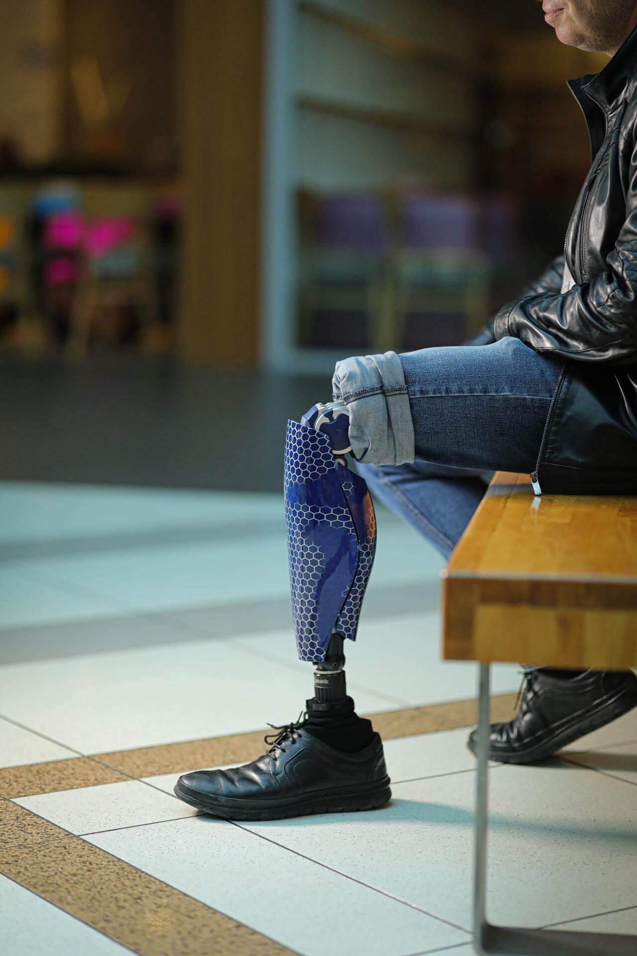 Протези за крака - Димитър 25 - Ortomedics