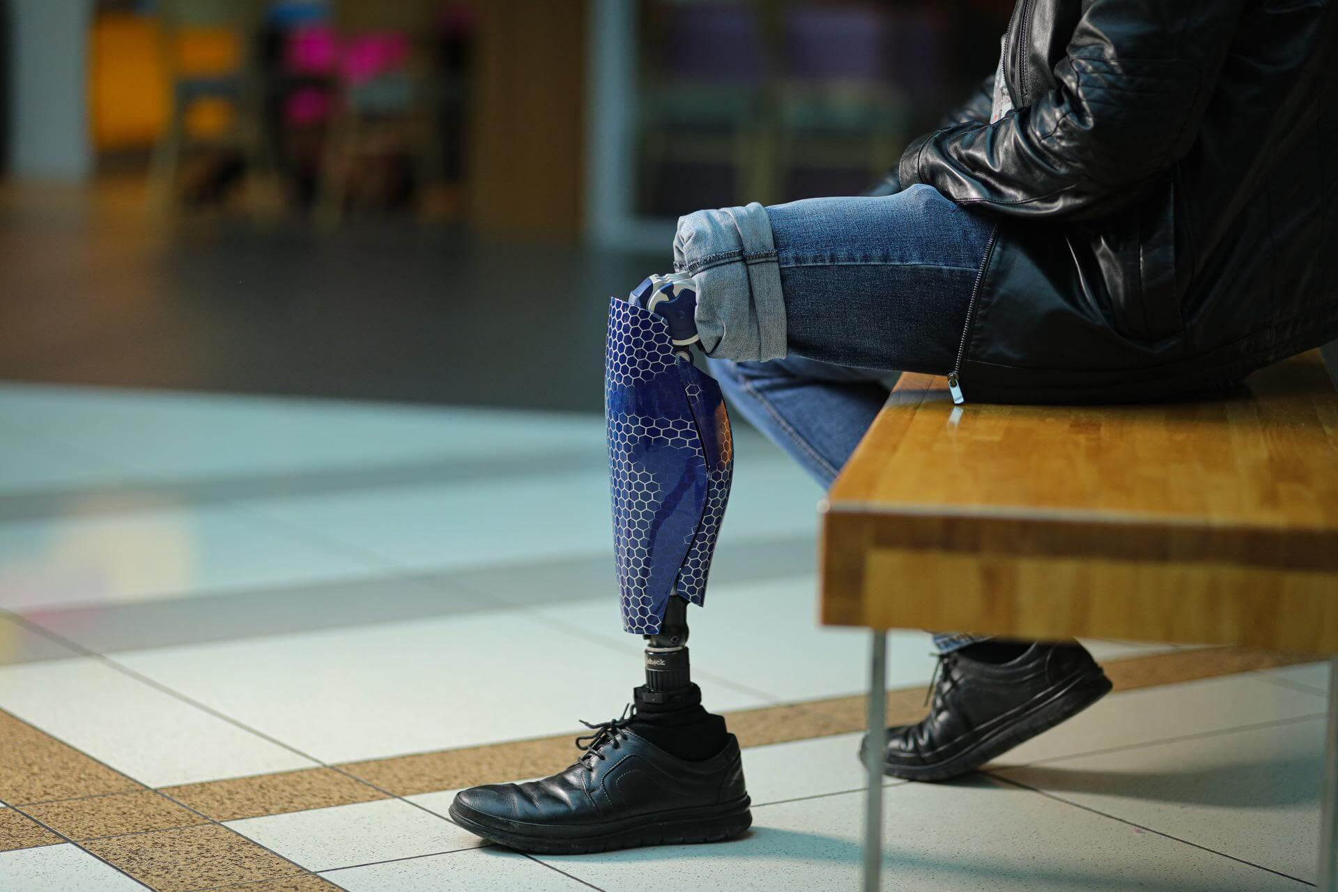 Протези за крака - Димитър 26 - Ortomedics