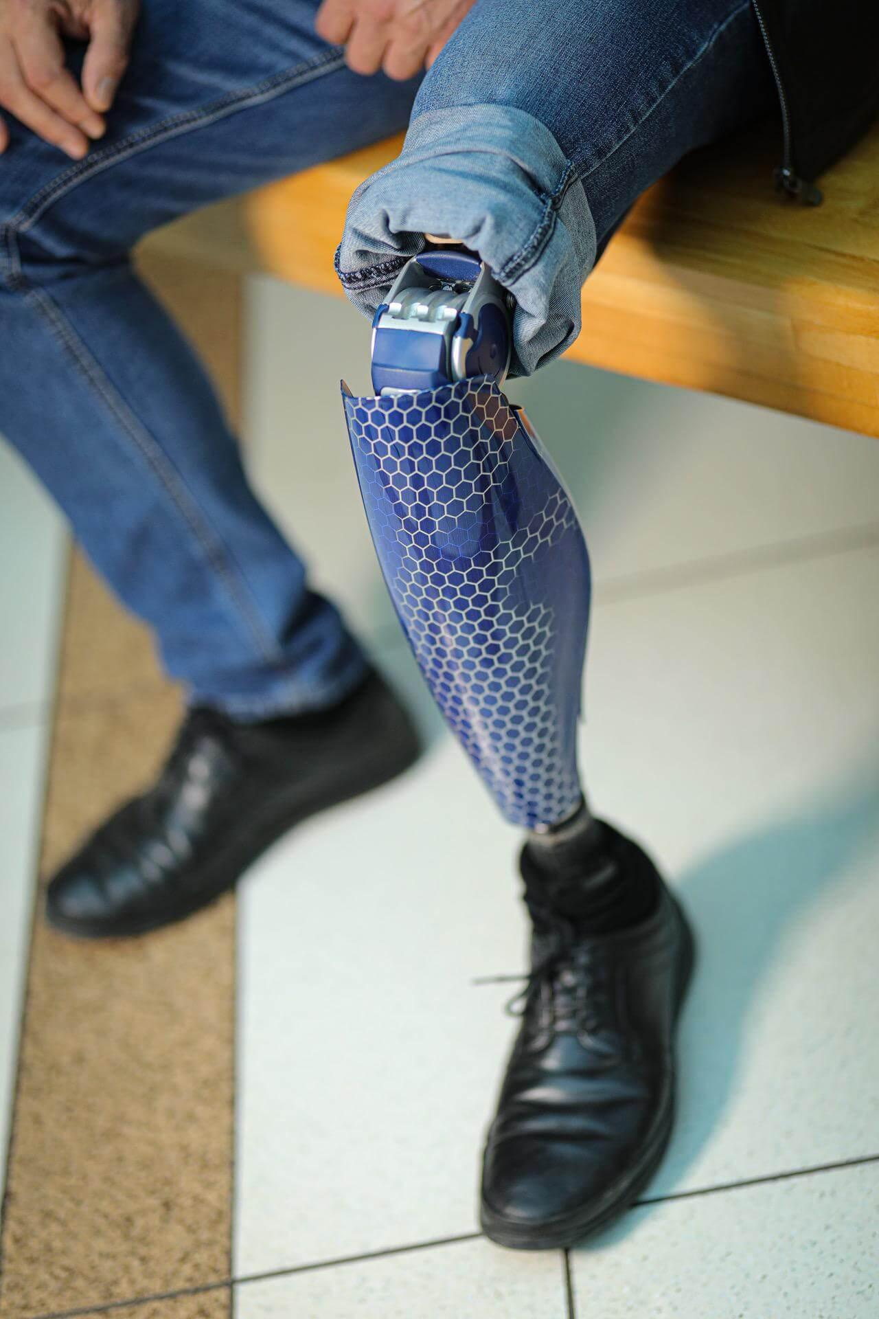 Протези за крака - Димитър 28 - Ortomedics