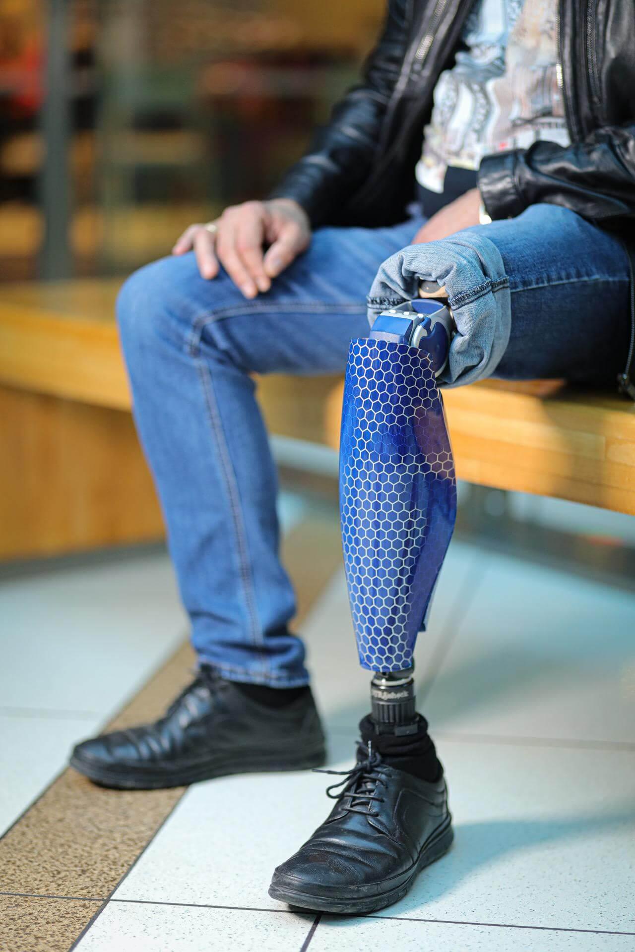Протези за крака - Димитър 30 - Ortomedics