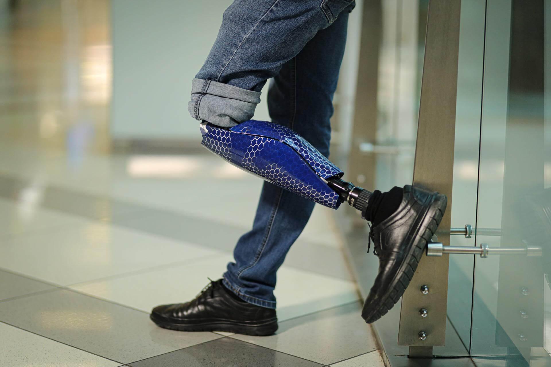 Протези за крака - Димитър 7 - Ortomedics