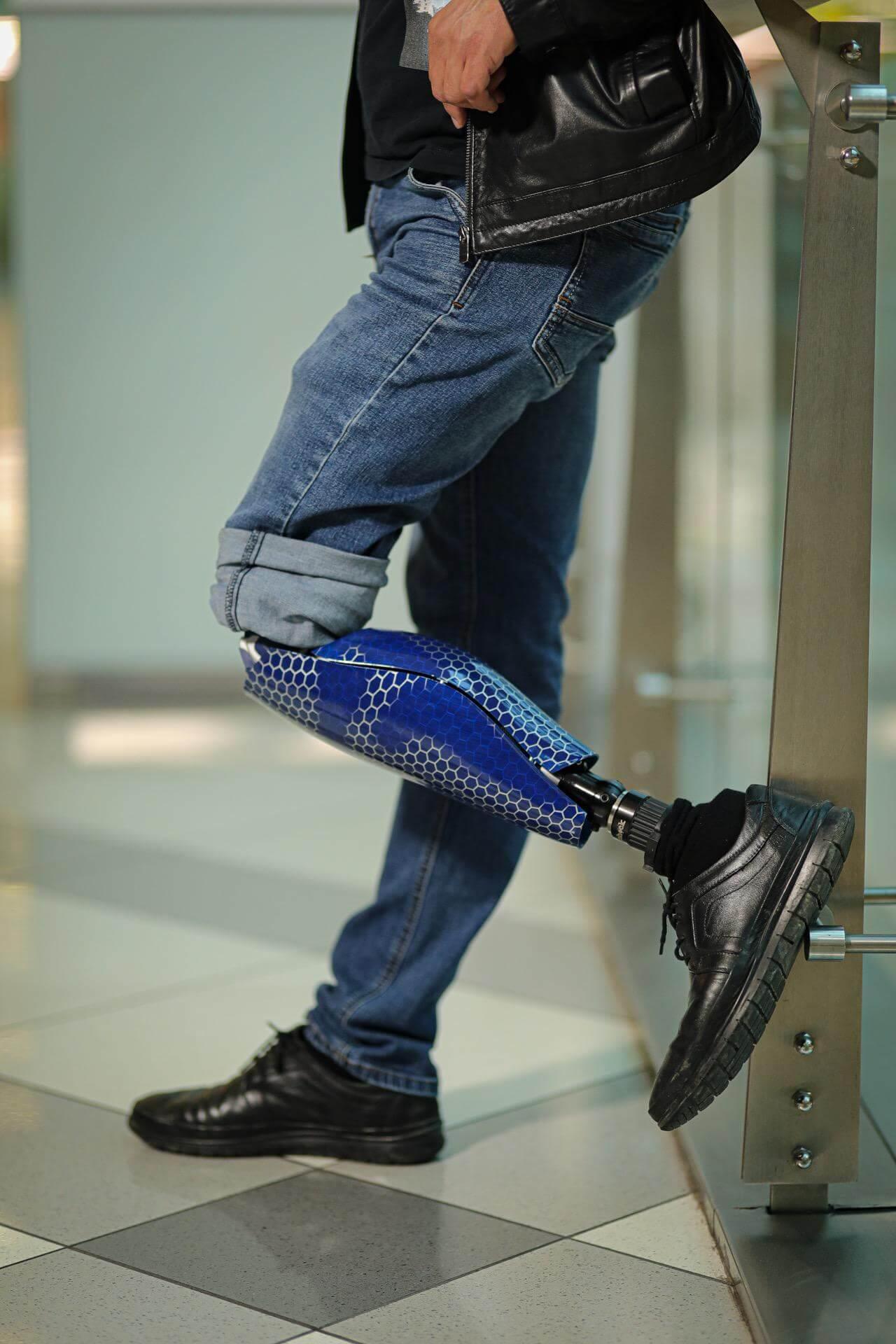 Протези за крака - Димитър 8 - Ortomedics