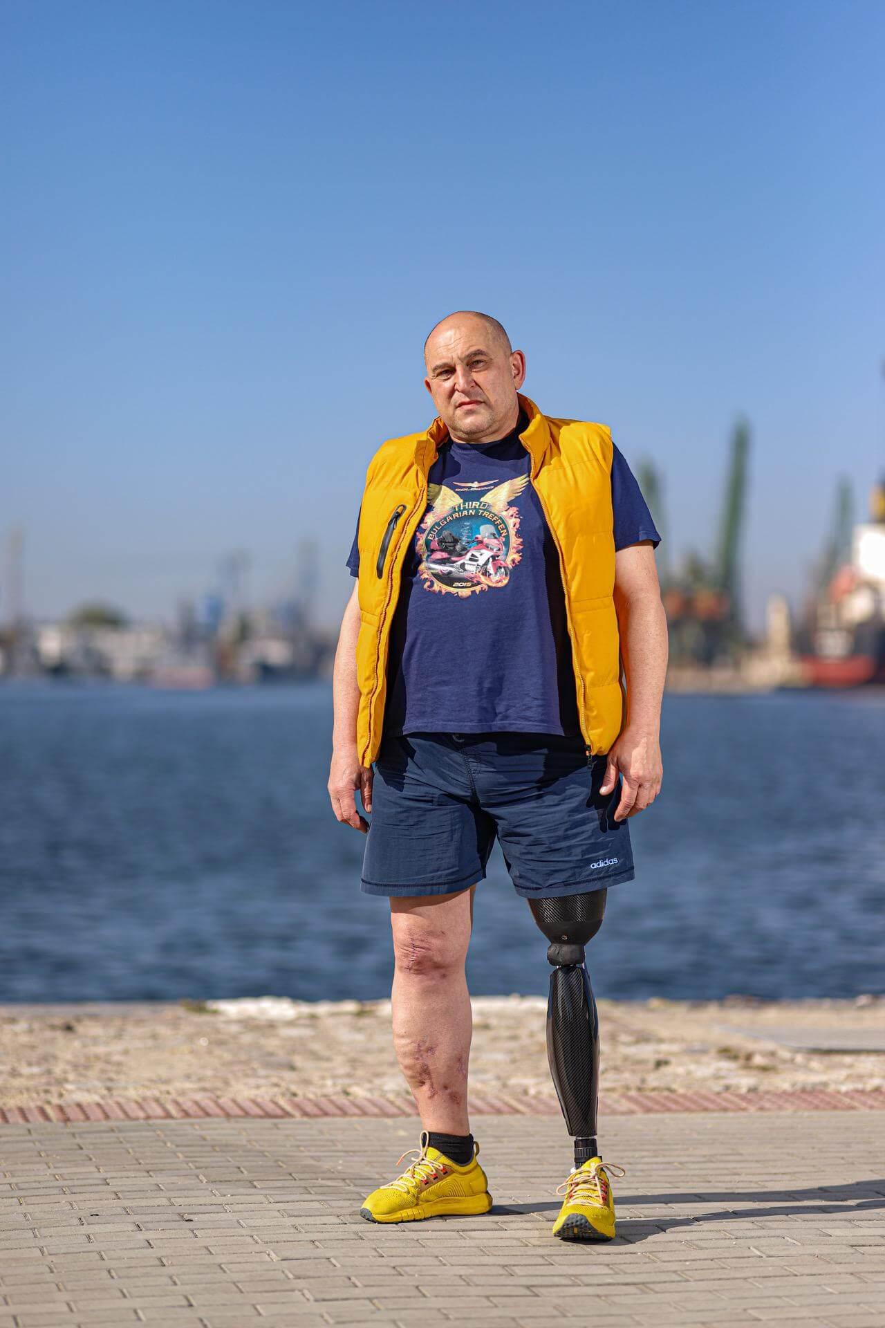Протеза за крак ( долен крайник ) - Ortomedics