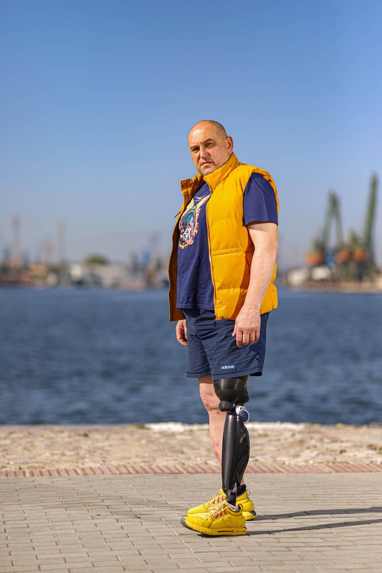 Протеза за крак - Асен бизнесмен - Ortomedics