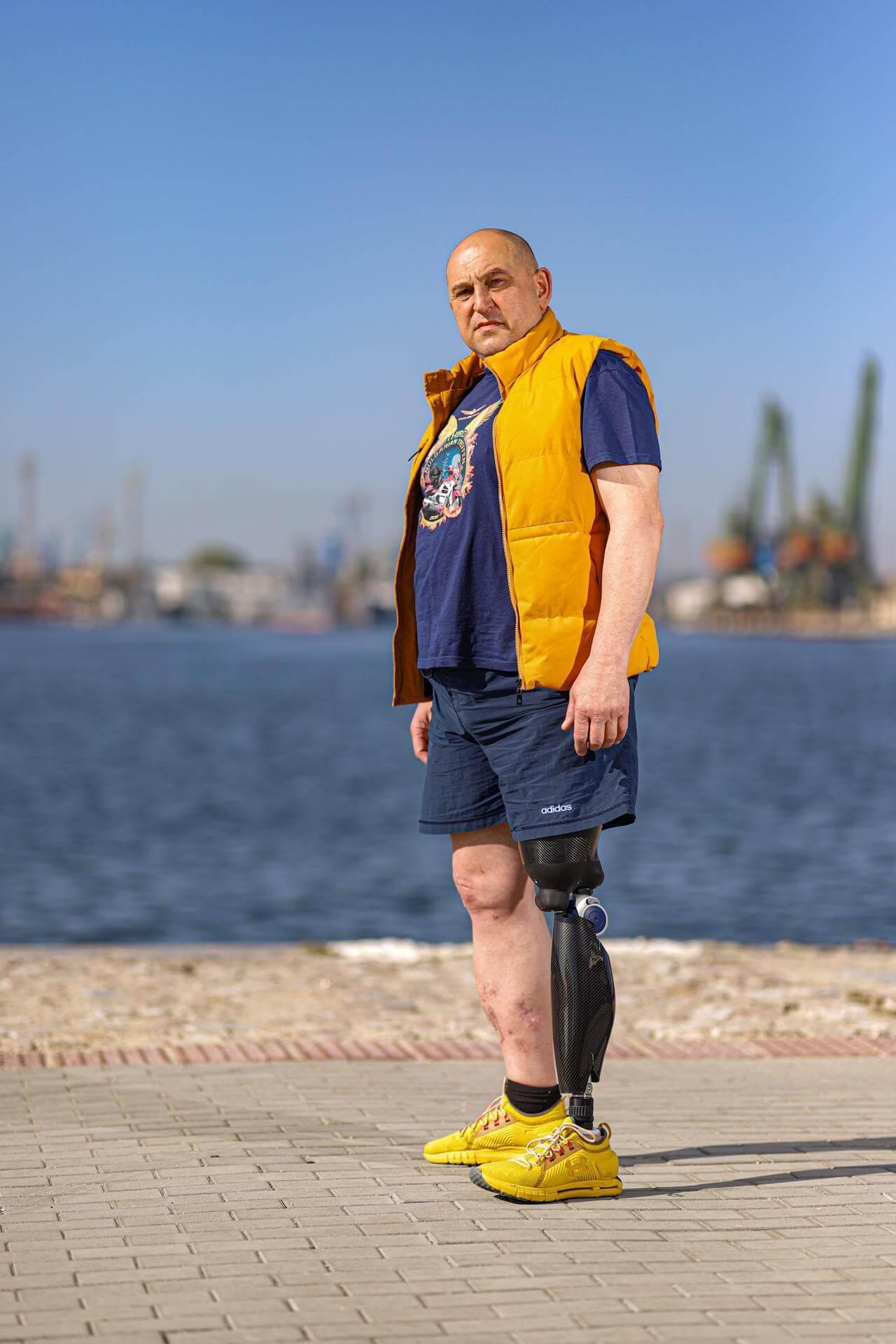 Протеза за крак - Асен - Ortomedics