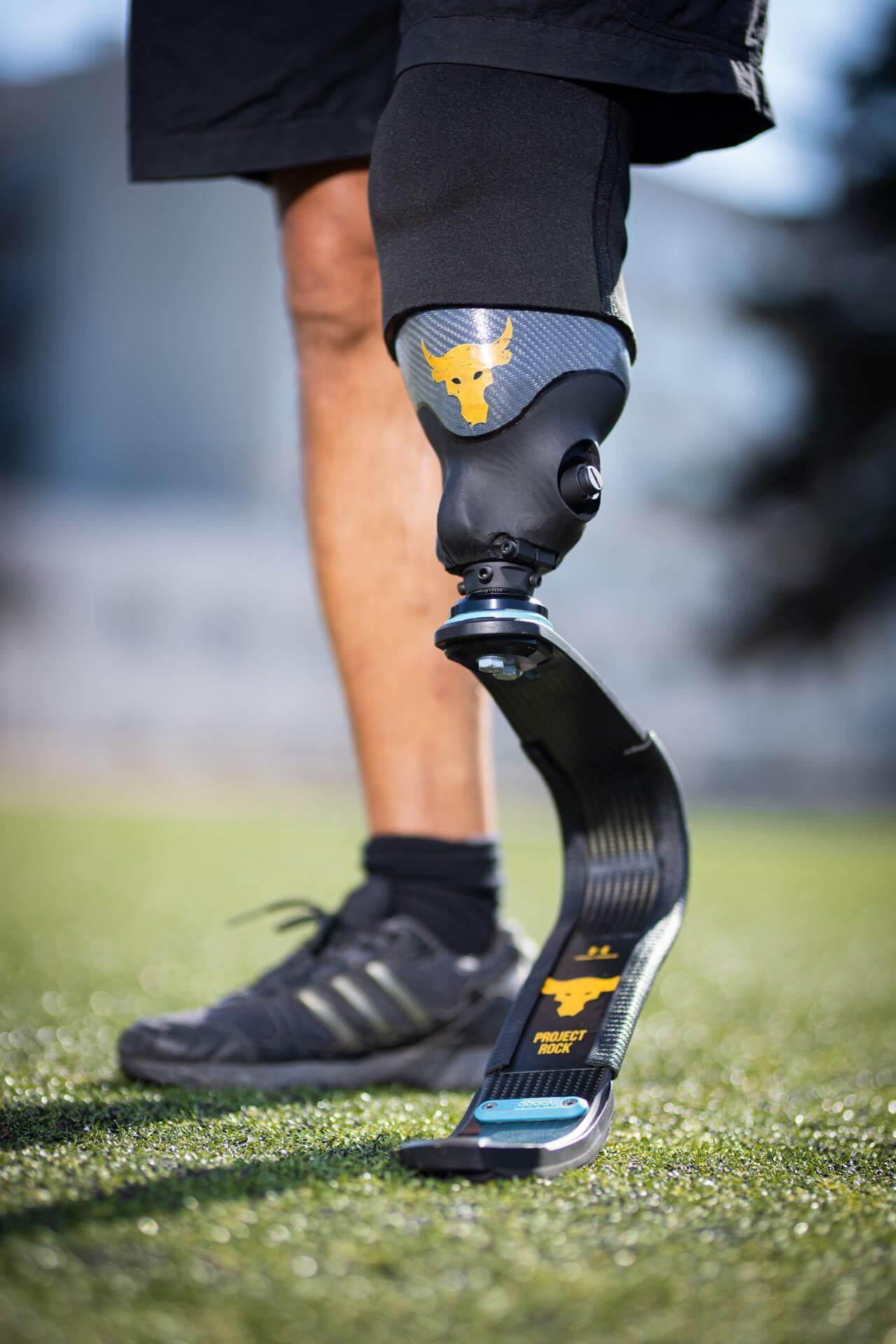 Спортна протеза за крак - Станислав от Варна - Ortomedics