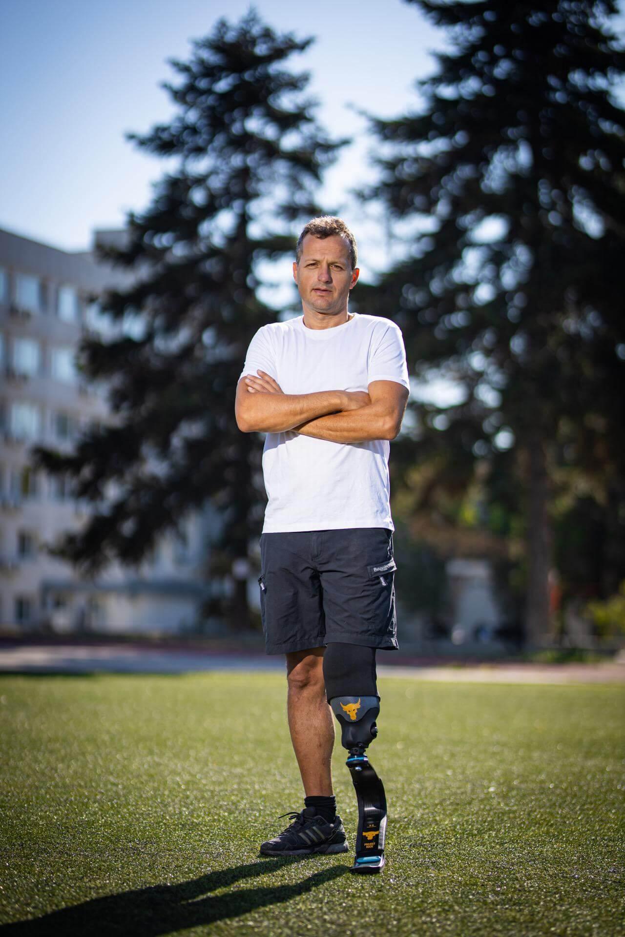 Спортна протеза за долен крайний ( крак ) - Станислав - Ortomedics